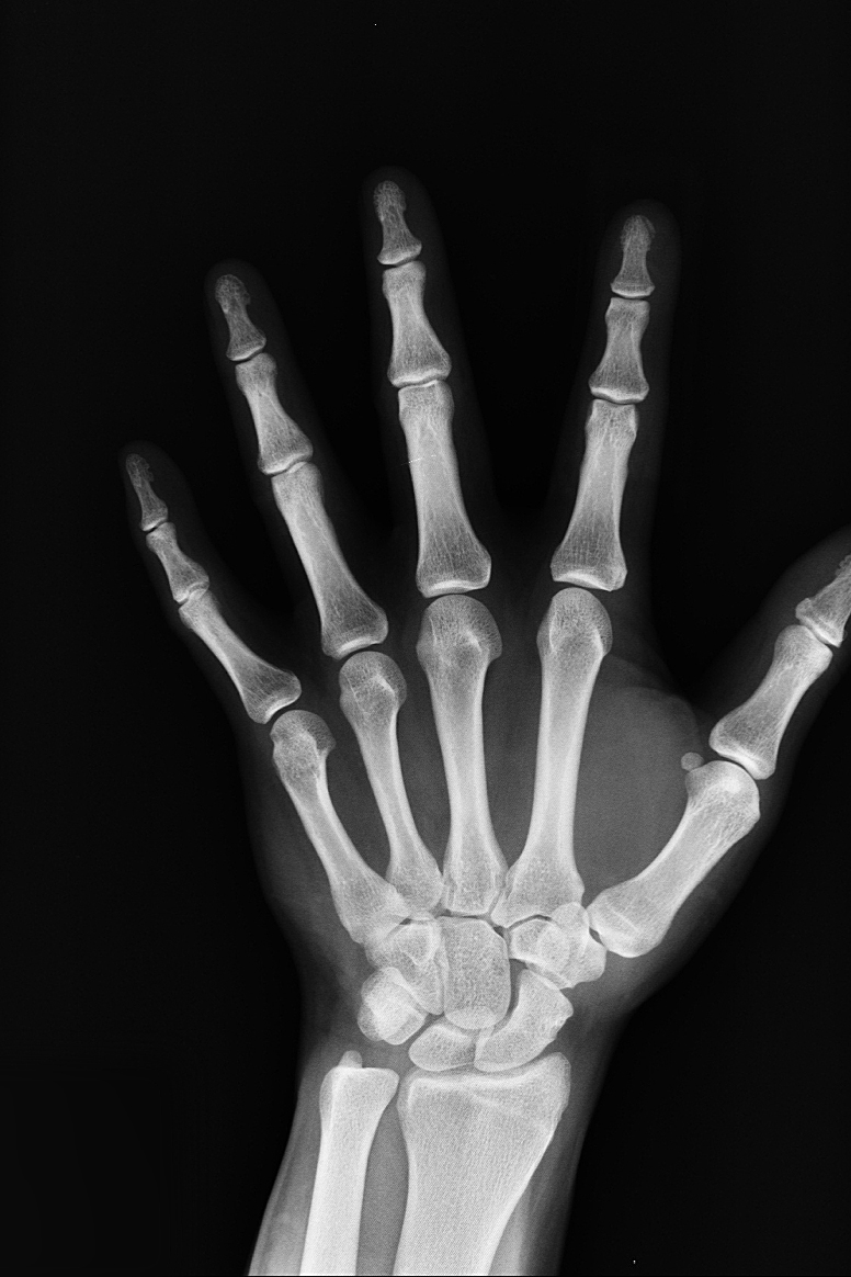 XRay of a hand